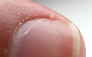 Как использовать заговоры в борьбе с грибком ногтей