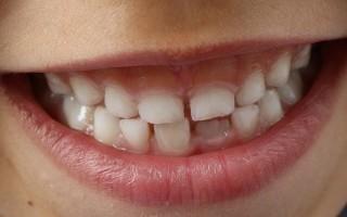 Заговоры, применяемые для роста зубов, и их выполнение
